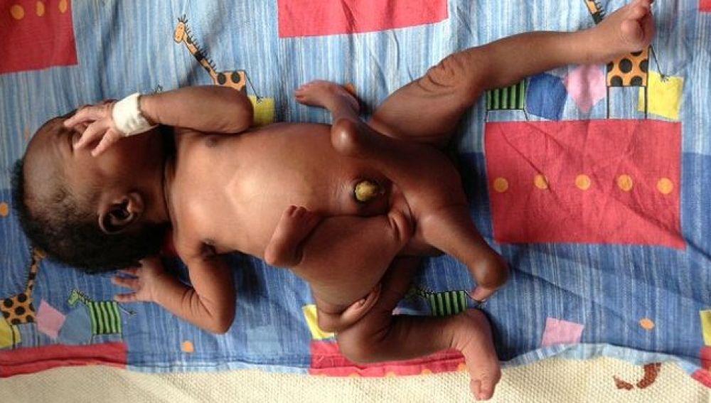 El bebé, antes de enfrentarse a la operación, con cuatro brazos y cuatro piernas