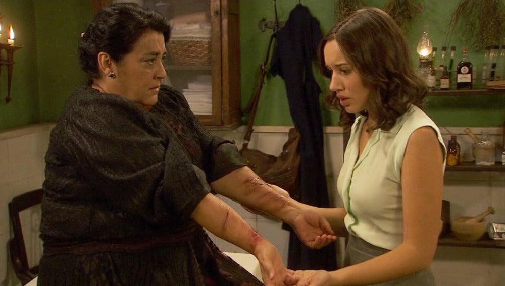 Bernarda muestra a Aurora las heridas de sus brazos
