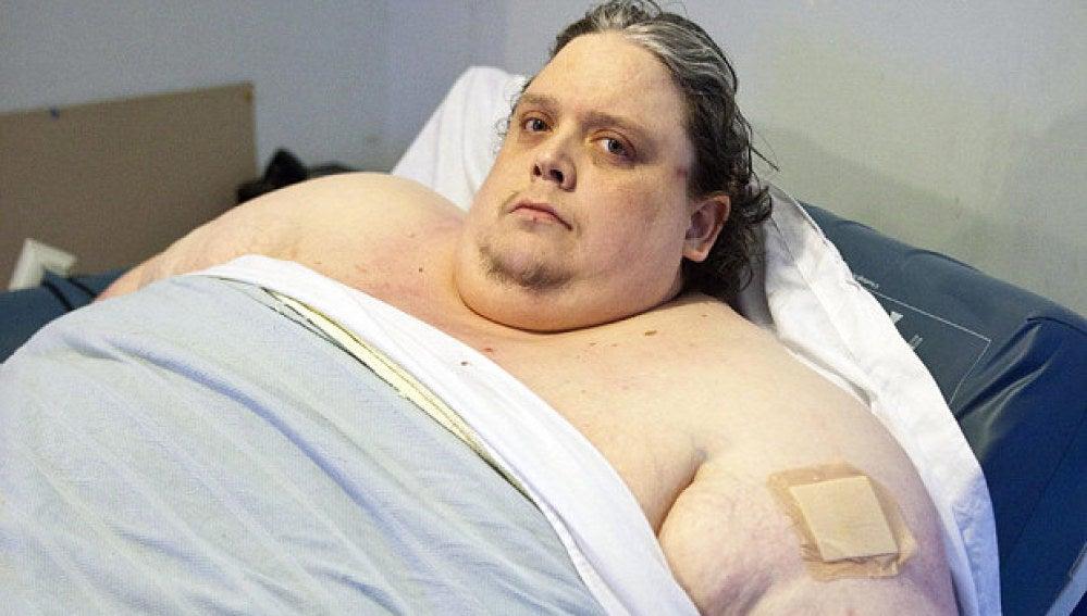 Muere el hombre más gordo del mundo a los 44 años