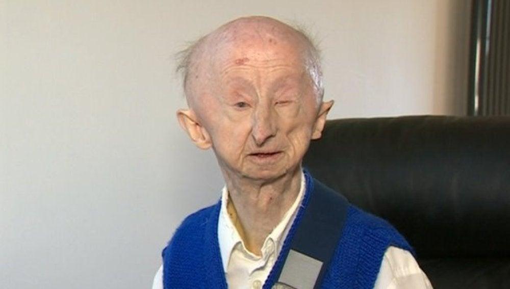 Alan Barnes, es pensionista y sufre una discapacidad