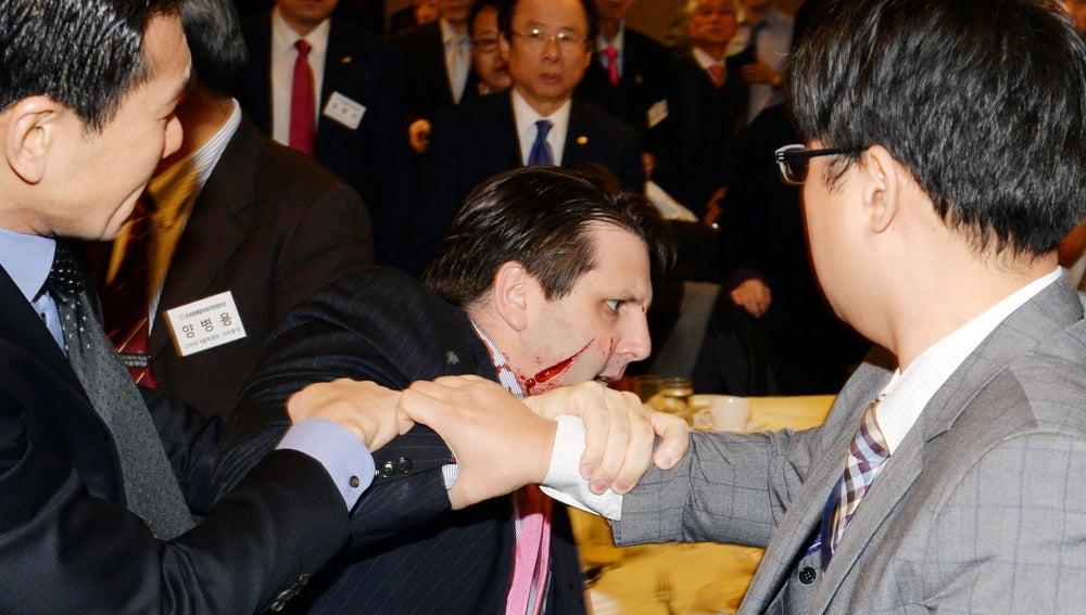 El embajador de Estados Unidos en Corea del Sur, Mark Lippert
