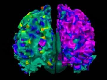 Proteína clave en las enfermedades neurodegenerativas