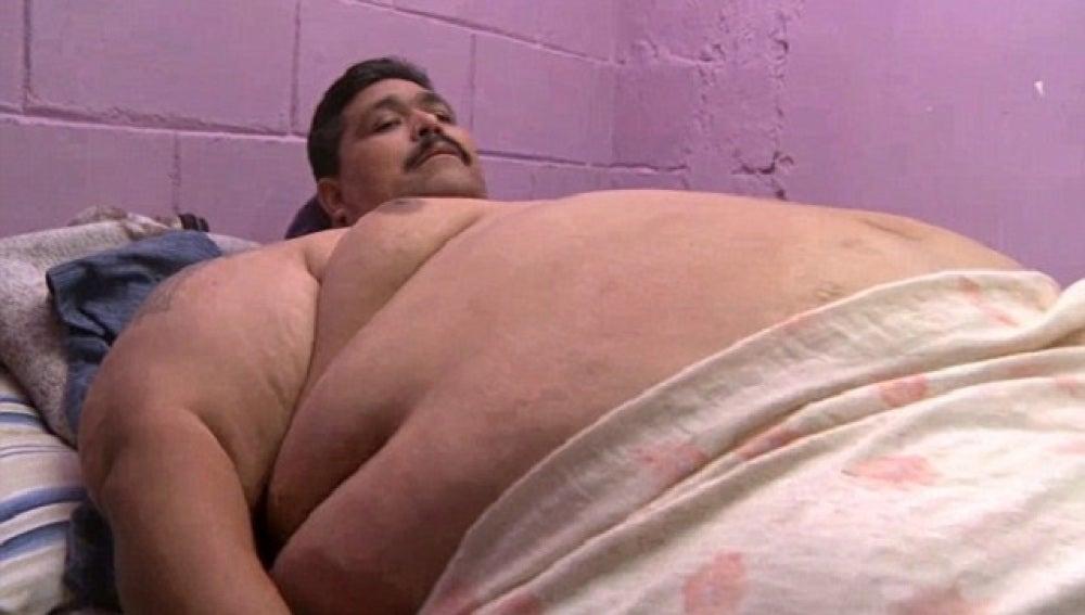 Andrés Moreno, el hombre más obeso del mundo