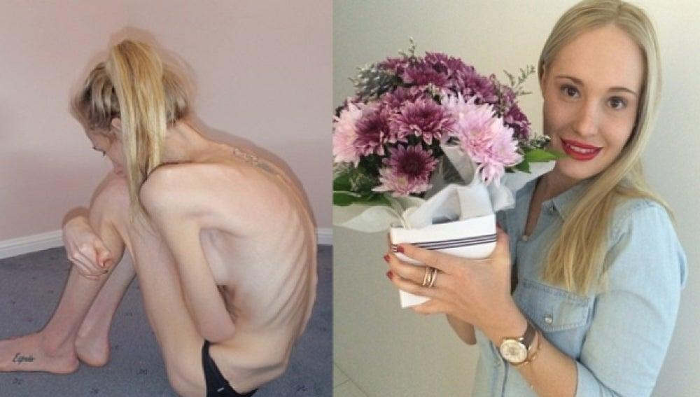 Fotos de Gema Walker antes y después de padecer anorexia