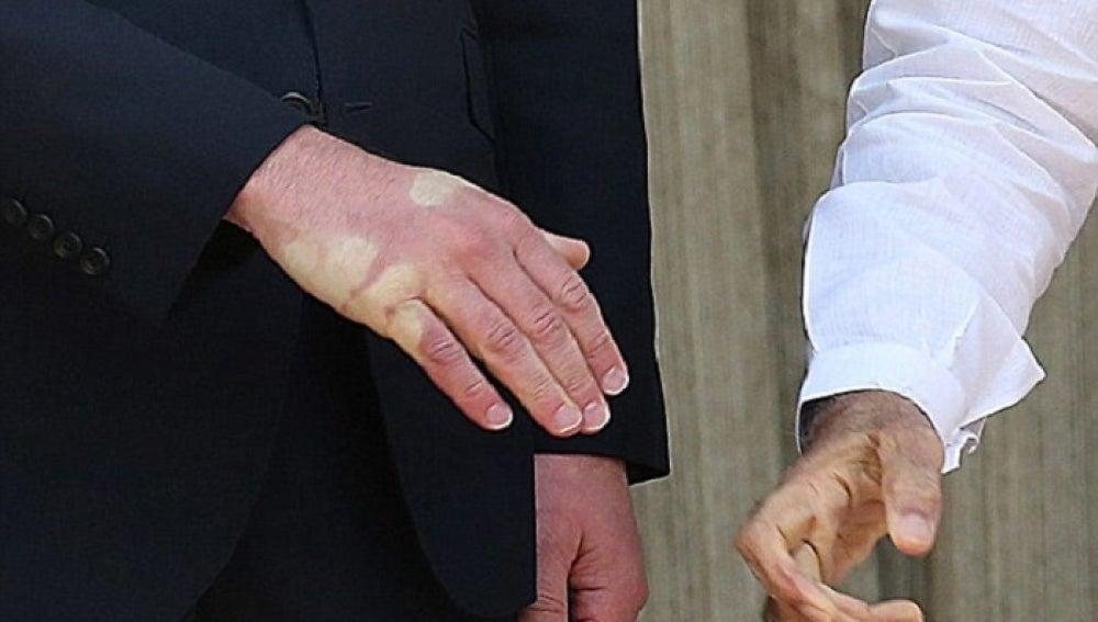 La mano del príncipe Gullermo tras el apretón de manos con Modi