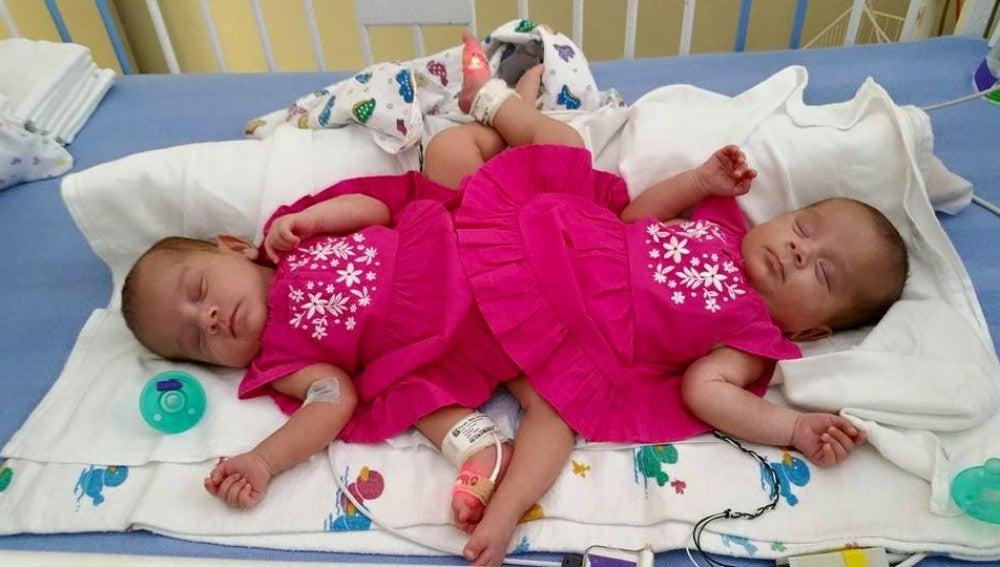 Las dos hermanas siamesas del grupo de trillizas