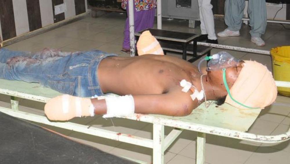 El joven se encuentra en estado crítico en el hospital