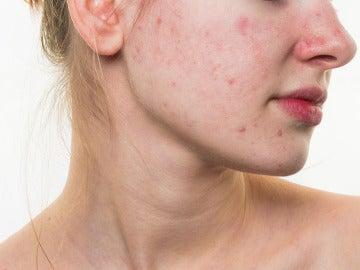 ¿Hay comidas que provocan acné? Pues, puede ser...