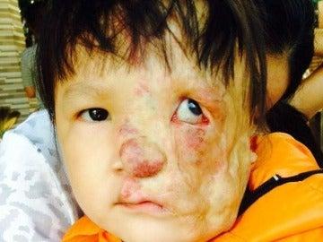 La niña de Vietnam necesita urgentemente la operación