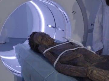 Frame 21.423921 de: Analizan con técnicas de radiología cuatro momias del Museo Arqueológico de Madrid