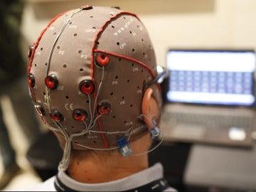 Estimulación eléctrica cerebral con electrodos