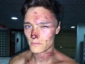 El DJ británico Alex Henderson tras ser agredido en Magaluf