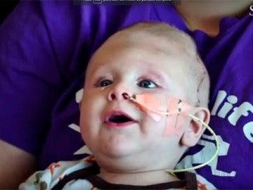 El pequeño se encuentra en buen estado de salud tras las intervenciones.