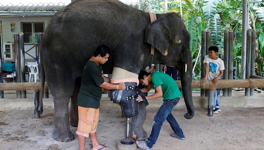 Mosha recibe su prótesis