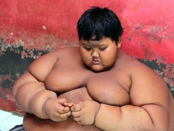 A sus 10 años, Arya Permana pesaba 200 kilos.