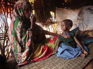 El 98 % de las mujeres y niñas en Somalia han sufrido ablación