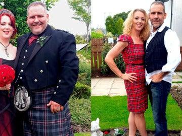 El antes y el después de su obesidad