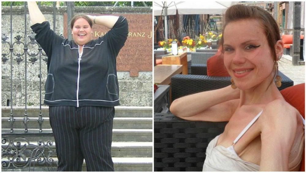 Lisa Milburn antes y después