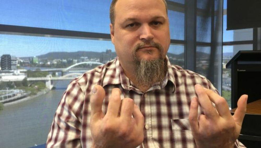 Dean Reid posa tras reemplazarle el dedo