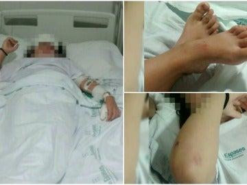 Terribles imágenes de la niña apaleada en Palma