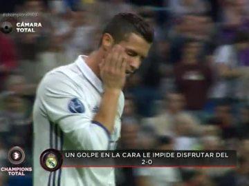 Cristiano Ronaldo se queja de un golpe en la cara tras el 2-0
