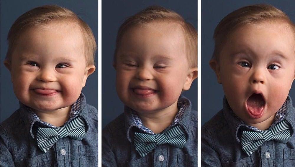 Asher en la campaña 'Cambiando la cara de la belleza'