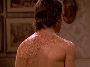 ¿Por qué tiene estas marcas en la espalda Ismael?