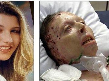Judy Malinowski, antes y después de haber sido quemada viva por su novio
