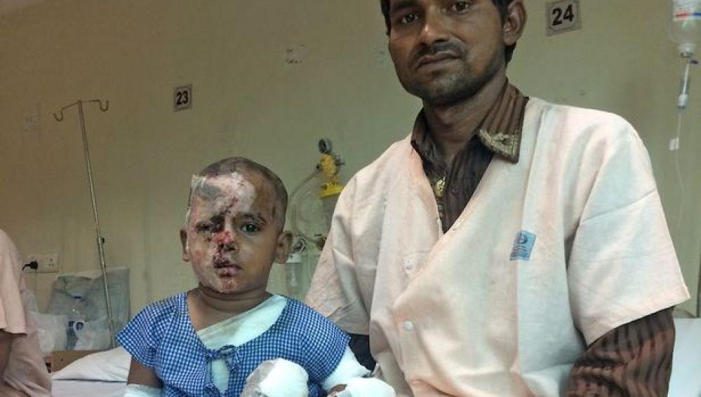 El niño atacado junto a su cirujano