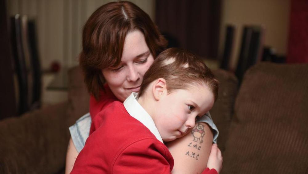Apryl Corbett junto a su madre después de que le quitaran la peluca