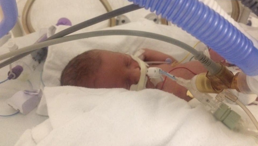 La pequeña Phoebe tras nacer