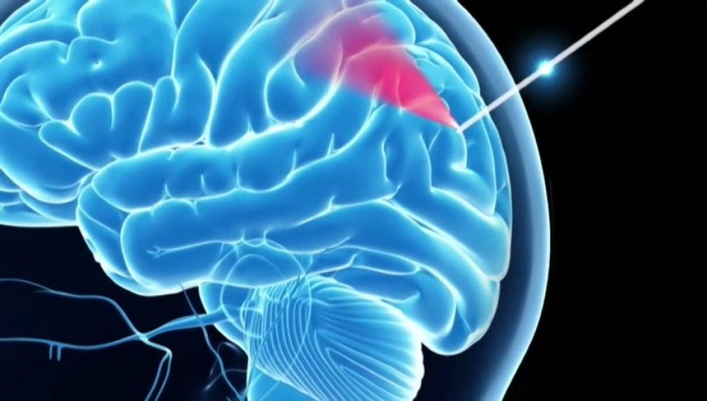 """Frame 5.742864 de: Desarrollan una """"aguja inteligente"""" para operaciones de cerebro"""