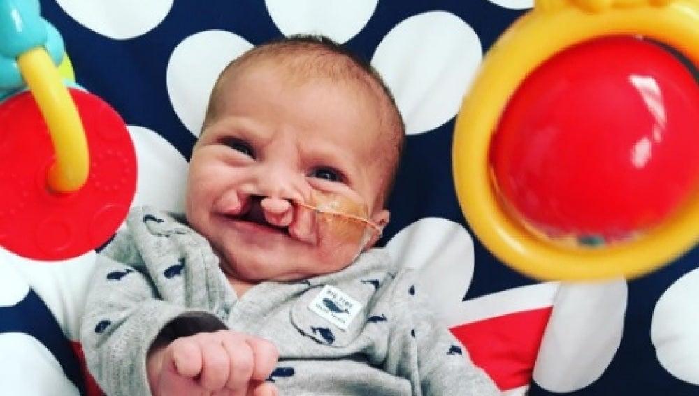 Brody, el bebé con labio leporino antes de ser operado