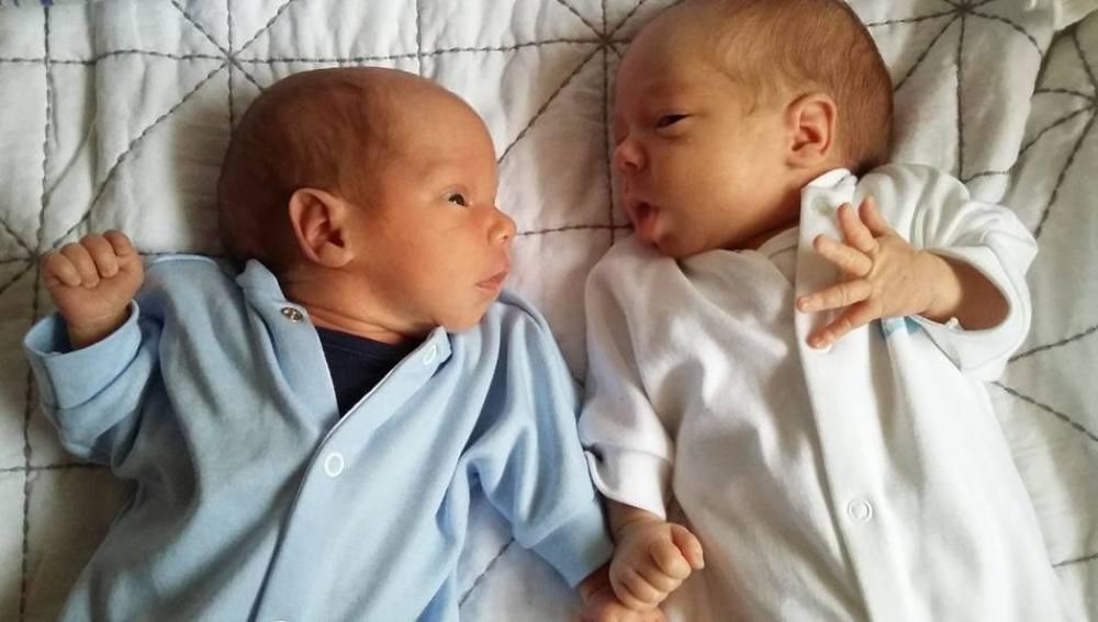 Imagen de los gemelos de Hayley y Charlie