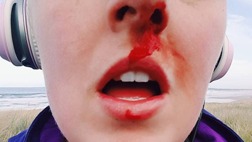 Sarah Tough recibe un duro golpe tras defender a una cría de foca de la tortura de un grupo de niños