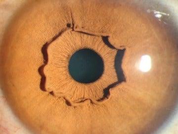 Una extraña forma que sobresale del iris de una mujer china