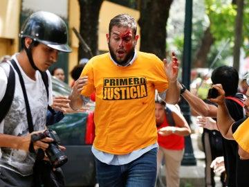 Juan Requesens tras ser agredido