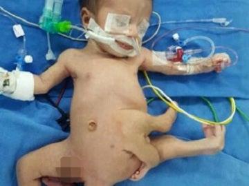 Un bebé nace con ocho extremidades y es operado con éxito en un hospital en la India
