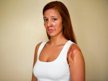 Joven atacada con ácido en una discoteca de Londres el pasado 22 de abril