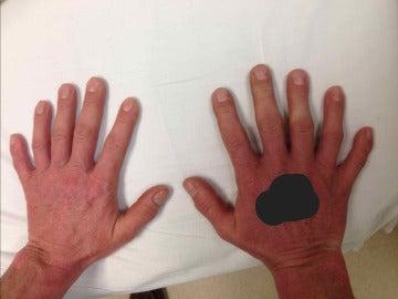 Manos con seis dedos