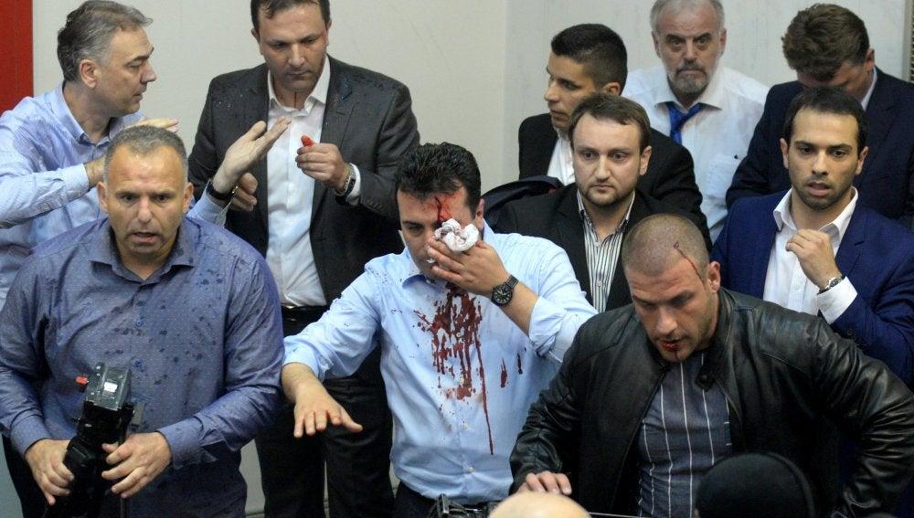 El líder de la Unión Socialdemócrata de Macedonia, Zoran Zaev, es visto con una herida en la cabeza