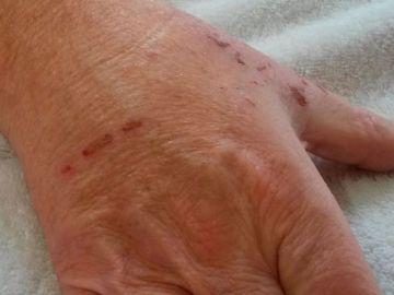 La mujer mordió al hombre en la mano dejándole marcas