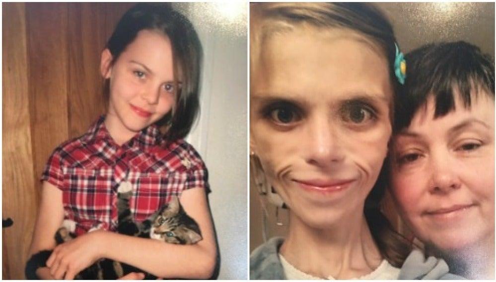 Pippa, la adolescente con anorexia que acabó suicidándose