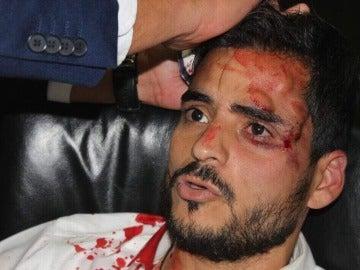 Heridas causadas a un diputado por los opositores