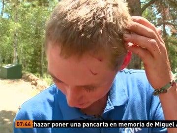 Un joven es atacado por un oso en EEUU