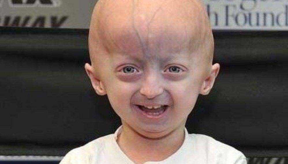 Afectado de progeria