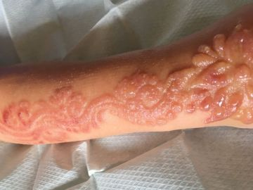 Quemaduras producidas a una niña de siete años por una tatuaje de henna