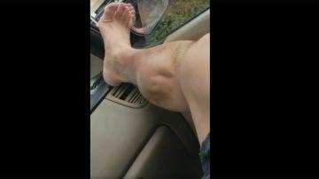 La pierna del hombre en el momento en el que sufre un calambre