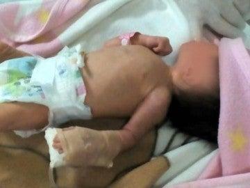 Bebé rescatada del basurero en Colombia