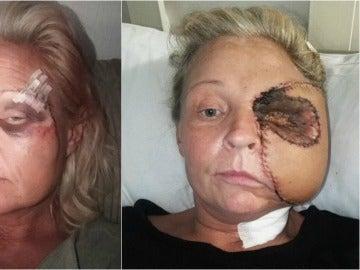 Donna Corden, antes y después de su primera reconstrucción de cara